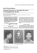Aarskog syndrome in a brazilian boy born to consanguineous parents.