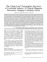 The clinical and topographic spectrum of cerebellar infarcts  A clinicalЧmagnetic resonance imaging correlation study.