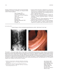 Clinical ImagesChronic intestinal pseudoobstruction and the  Вhide-bound   bowel sign.