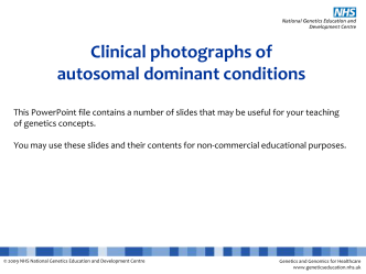 Autosomal dominant conditions - National Genetics Education Centre