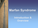 MarFan Overview - Marfan Support and Information