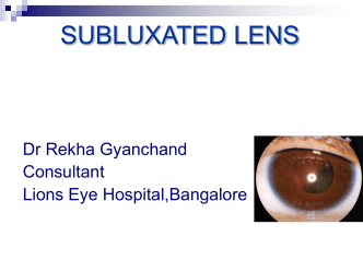 10-subluxated-lens - MM Joshi Eye Institute
