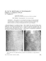 An aid for identification of dermatoglyphic patterns in subjects difficult to fingerprint.