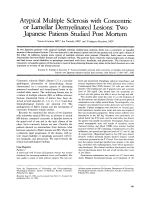 Atypical multiple sclerosis with concentric of lamellar demyelinated lesions  Two Japanese patients studied post mortem.
