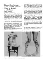 Bilateral involvement of the lateral cutaneous nerve of the calf in a diabetic.