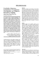 Cerebellar infarction  Comparison of computed tomography and magnetic resonance imaging.