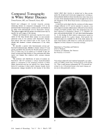 Computed tomography in white matter diseases.