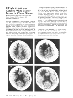 CT manifestation of cerebral white matter lesion in Wilson disease.