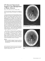 CT-directed stereotactic surgery in the management of brain abscess.