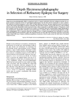 Depth electroencephalography in selection of refractory epilepsy for surgery.