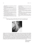 Clinical ImageCoexistence of diffuse idiopathic skeletal hyperostosis and ossification of the posterior longitudinal ligament of the cervical spine in a patient with ankylosing spondylitis.