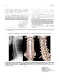 Clinical images ВMelting down   of the cervical spine in a patient with diffuse idiopathic skeletal hyperostosis.