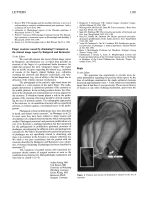 Finger exostosis caused by drumming Comment on the clinical image report by Buttgereit and Burmester.