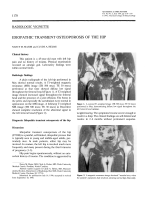 Idiopathic transient osteoporosis of the hip.