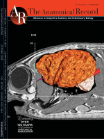 Neuroanatomy and Volumes of Brain Structures of a Live California Sea Lion Zalophus californianus From Magnetic Resonance Images.