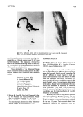 Vasculitides. Thomas R. Cupps MD and Anthony S. Fauci MD Philadelphia W. B. Saunders Company 1981. 211 pages 54 illustrations 27