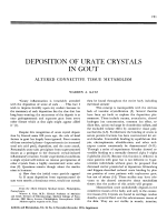 Deposition of urate crystals in gout.