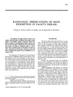 Radiologic observations on bone resorption in Paget's Disease.