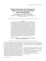 Rapid technique for imaging the blood vascular system using stereoangiography.