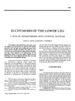 Ecchymosis of the lower leg.