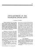 Osteoarthritis of the trapezioscaphoid joint.